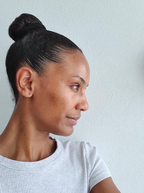 acne traitement naturel