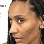 combat contre acné