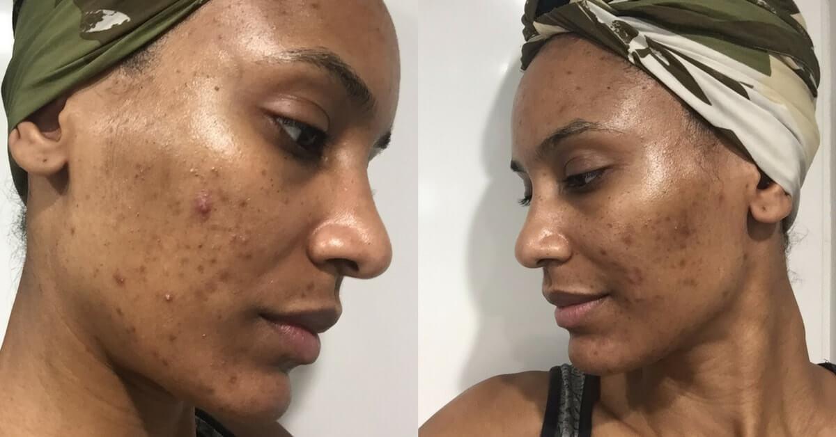 Comment-faire-disparaitre-tache-noires-acné.